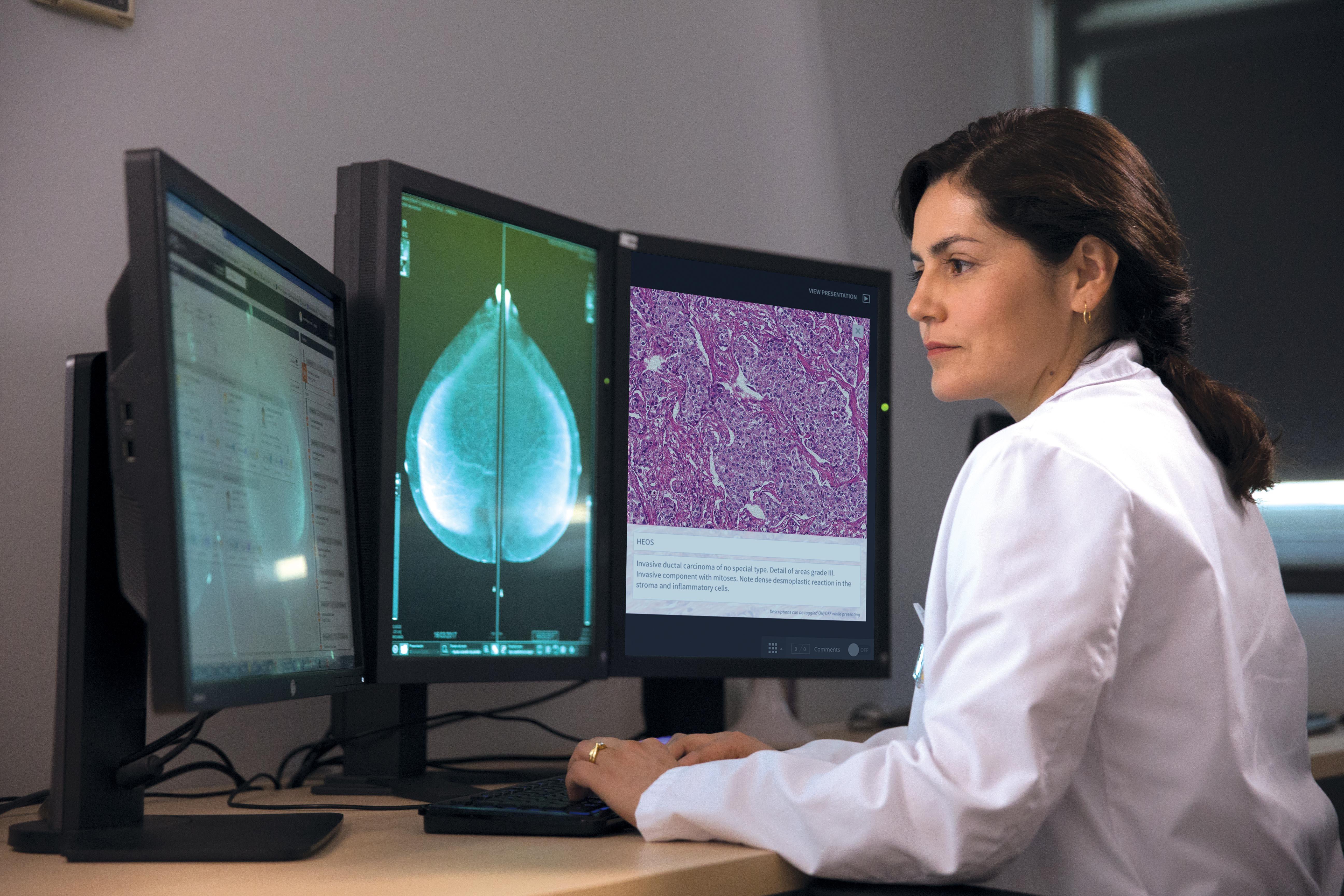 Das NAVIFY Tumor Board - Hinter den Kulissen der Krebsbehandlung